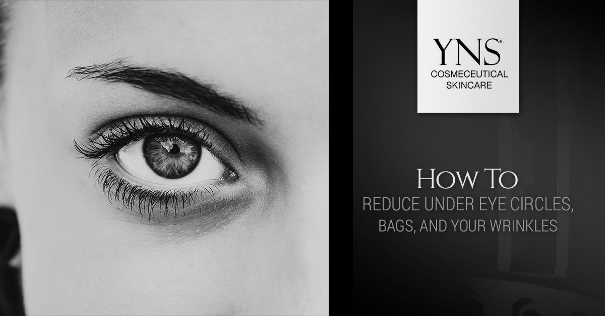 Top Skin Care Products: Eliminating Your Under Eye Bags ...
